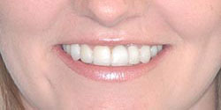 Front tooth extraction and implant after