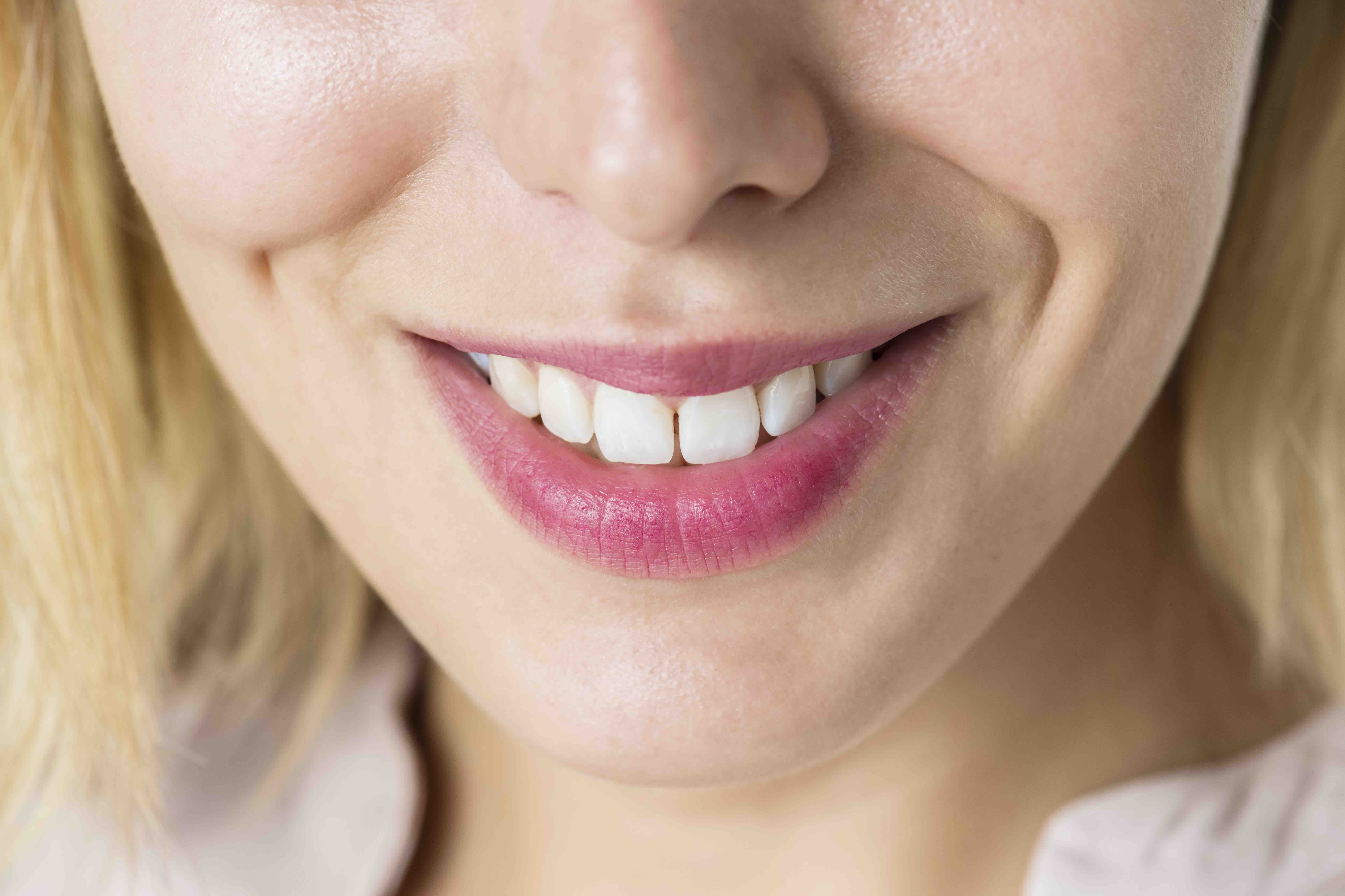 Close up of smiling woman with bridges or dental implants.