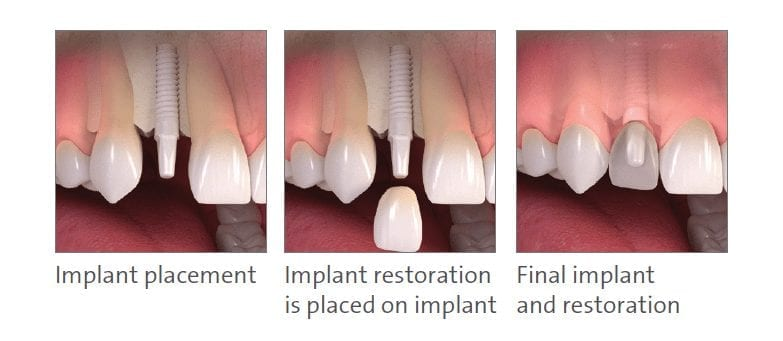 saint george dental implants