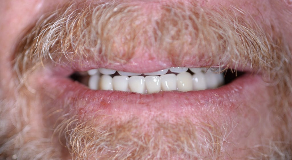 ross teeth in a day after