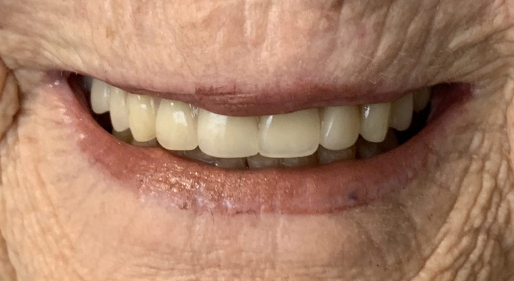 JoAnn Teeth in a day after