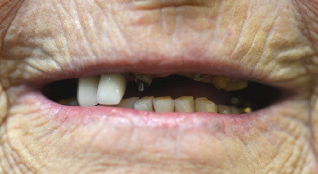 JoAnn teeth in a day before