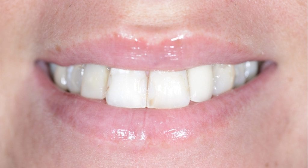 Jessica teeth in a day before
