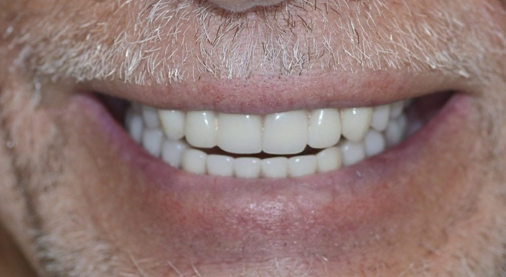 Jerry teeth in a day after