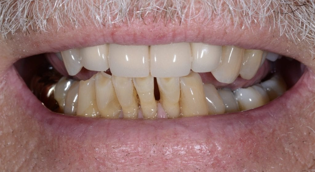 Jerry teeth in a day before