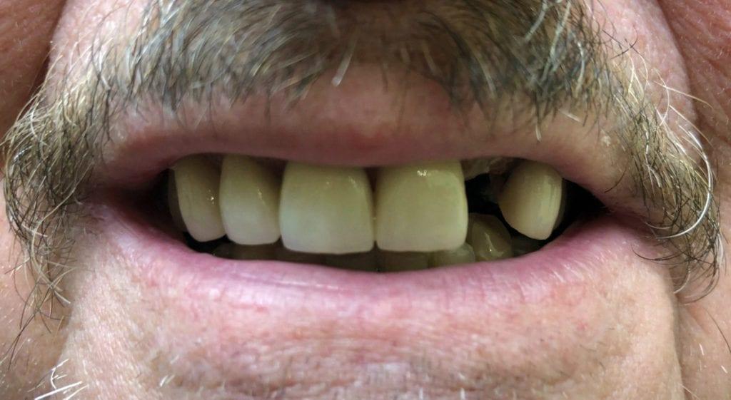 Glen teeth in a day before