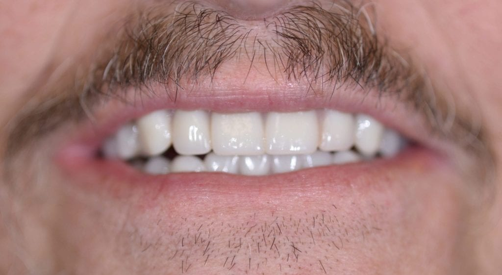 Glen teeth in a day after