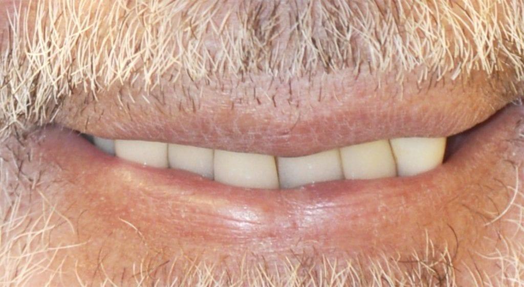 Diaz Teeth in a day before
