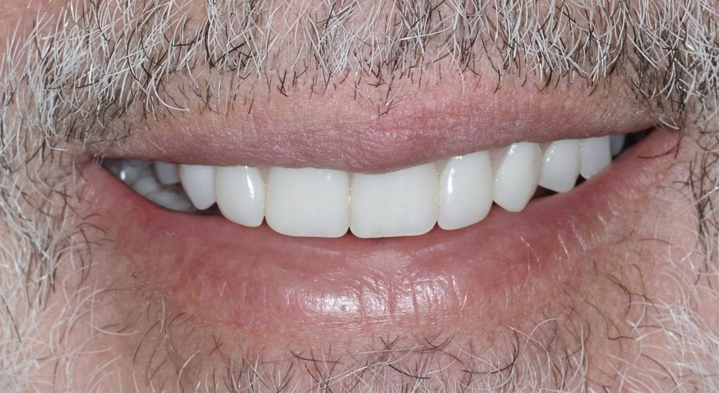 Diaz teeth in a day after