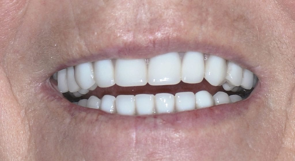 Diane Teeth In A Day After