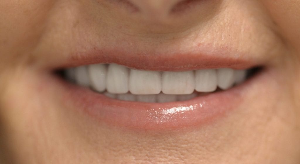 Alexis Teeth In A Day After