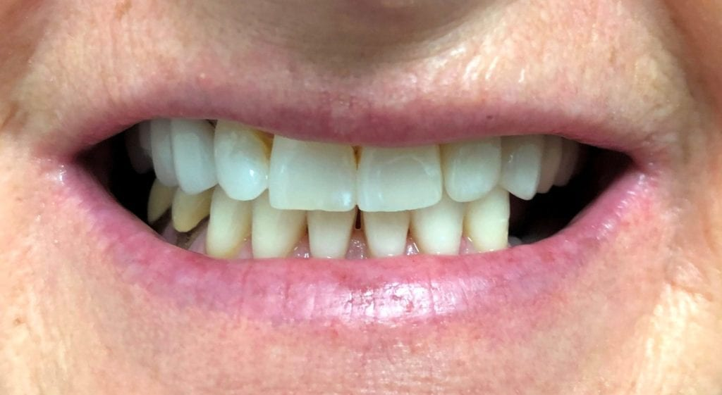 Alexis Teeth In A Day Before