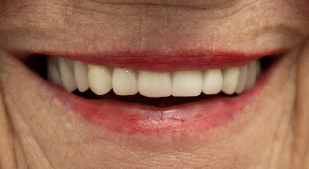 Barbara Teeth In A Day After